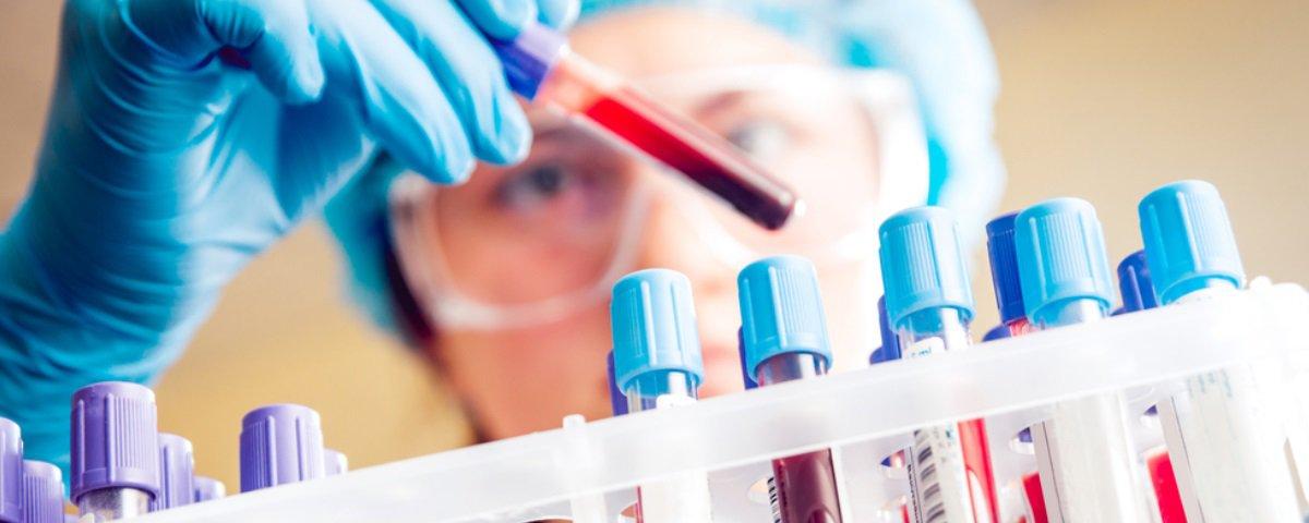 Nova pesquisa sugere que Alzheimer pode ser detectado por exame de sangue