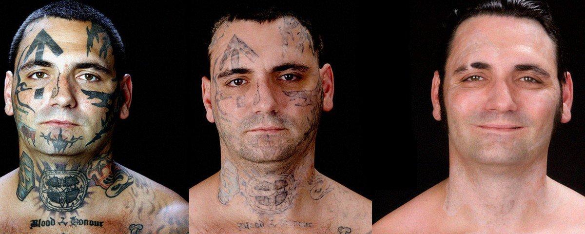Ex-skinhead faz remoção de tatuagem racista do rosto após se tornar pai