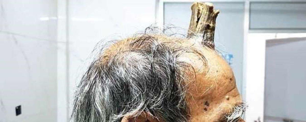 Caso estranho: homem tem 'chifre' de 10 centímetros na cabeça