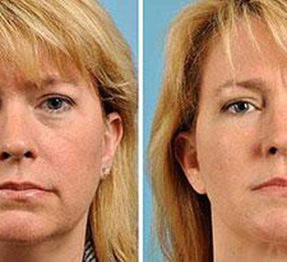 Bizarro: cirurgião oferece plásticas para quem quer ficar bonito na webcam