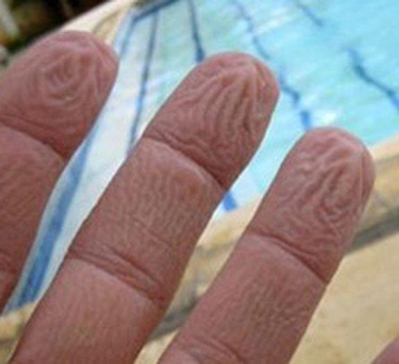 Por que os dedos enrugam quando passamos muito tempo na água?