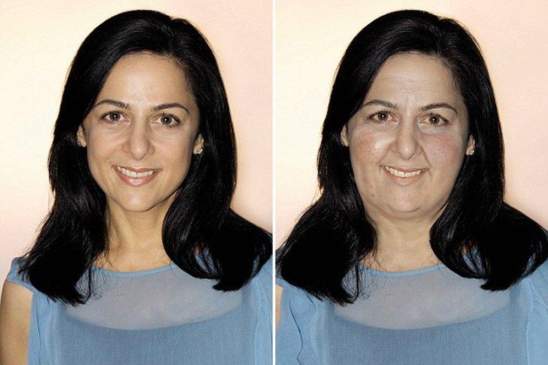 Anna Magge após ingerir grandes quantidades de carboidratos e junk food durante 10 anos.