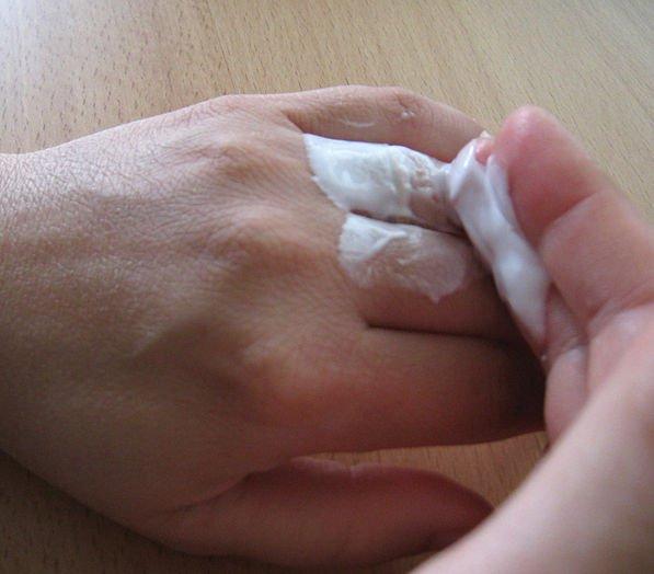 Aprenda 7 maneiras inteligentes para retirar um anel preso no dedo