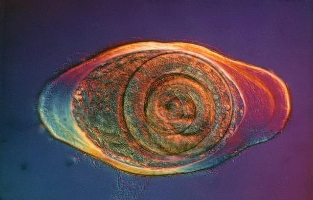 1976 – Pequeno parasita da espécie Trichinella spiralis encapsulado em um cisto clicado por Eric V. Gravé, de Nova York.