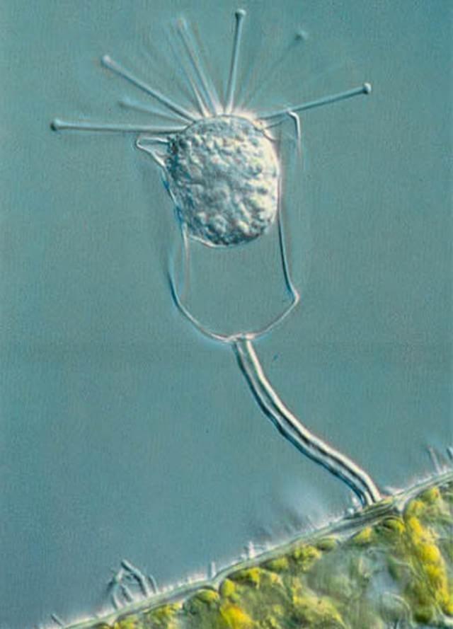 1979 – Protozoário preso a uma alga e com bactérias sobre sua superfície, capturado por Paul W. Johnson, da Universidade de Rhode Island, nos EUA.