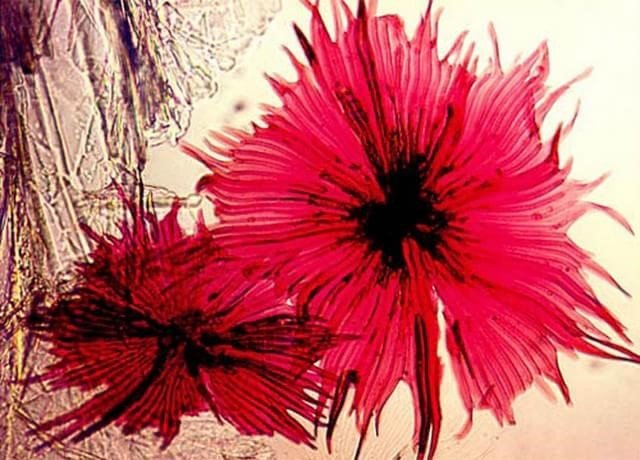 1982 – Plantinha do gênero Elaeagnus fotografada por Jon D. Eisenback da Universidade Estadual da Carolina do Norte.