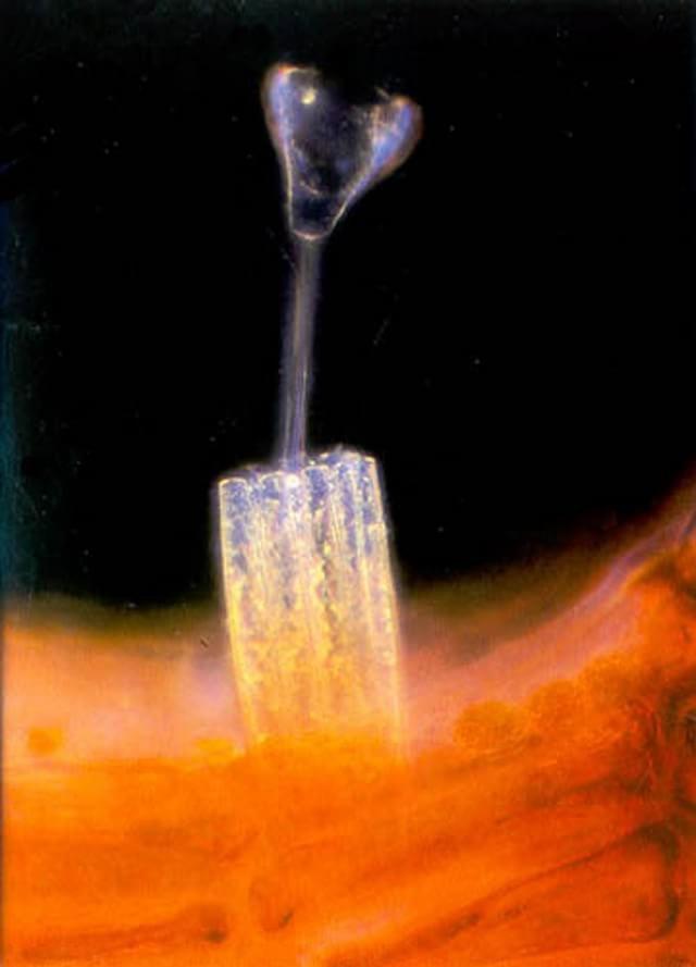 1983 – A imagem acima, clicada por Elieen Roux do Instituto Internacional de Pesquisa Cardíaca Bob Hope, mostra um protozoário da ordem Suctorida preso ao talo de uma alga vermelha rodeado por diatomáceas.
