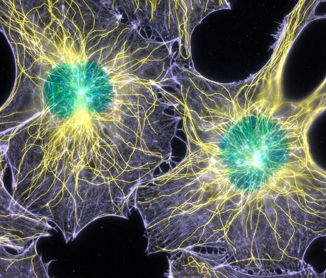 2003 – Actina filamentosa e microtúbulos de fibroblastos de ratinhos clicados por Torsten Wittmann do Scripps Research Institute dos EUA.