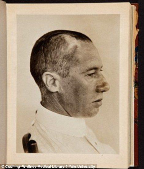 Terror: fotos antigas e assustadoras de pacientes de cirurgia cerebral