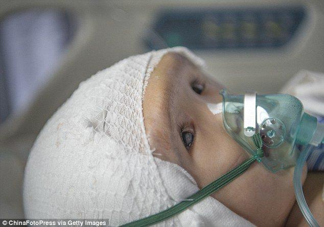 Impressora 3D salva a vida de uma criança chinesa