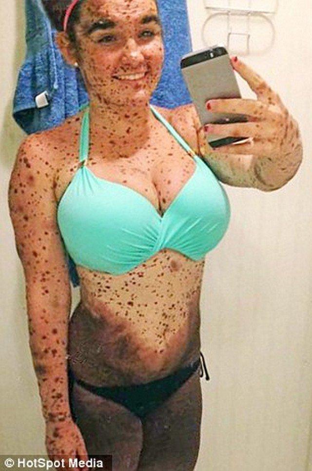 A história da jovem que nasceu com 70% do corpo coberto por manchas