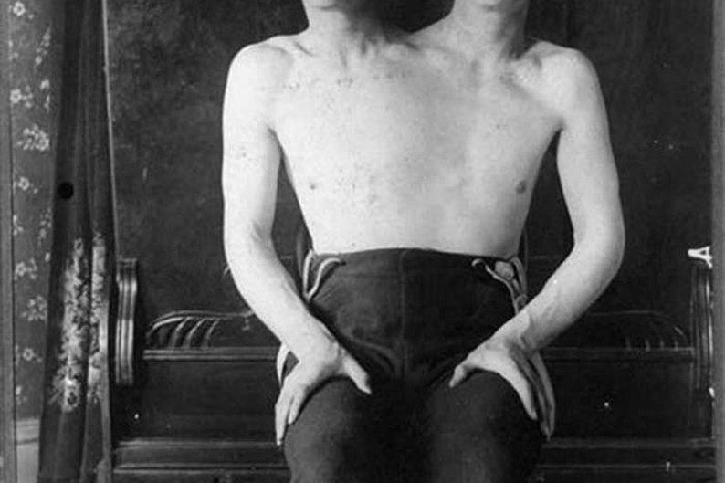O homem de duas cabeças