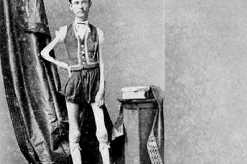 """Isaac W. Sprague, o """"esqueleto vivo"""""""