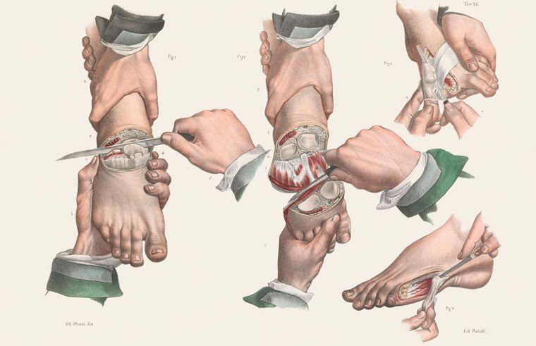 Amputação de diversos dedos do pé