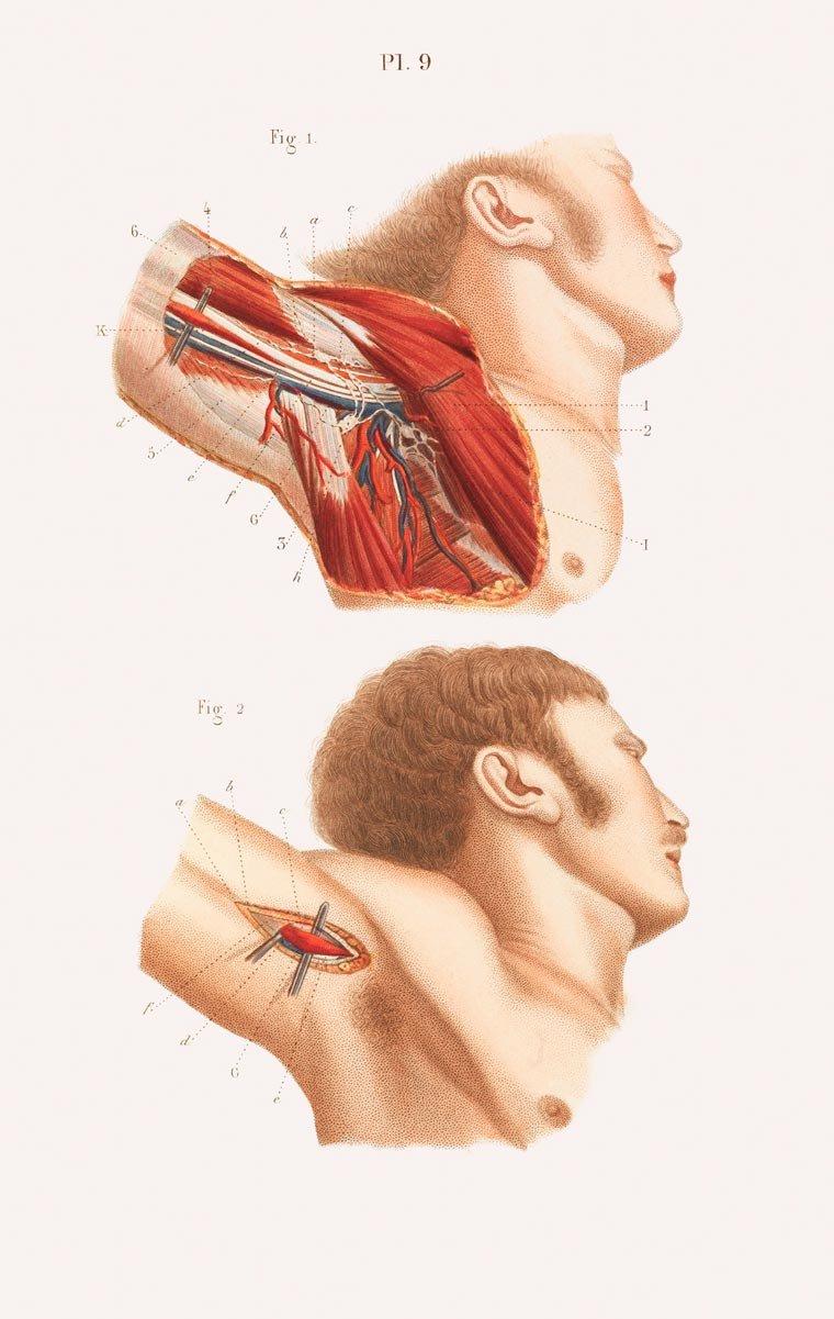 Impressionante! Veja ilustrações de cirurgias feitas no século 19
