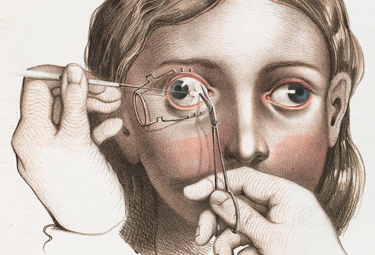 Cirurgia para tratamento do estrabismo