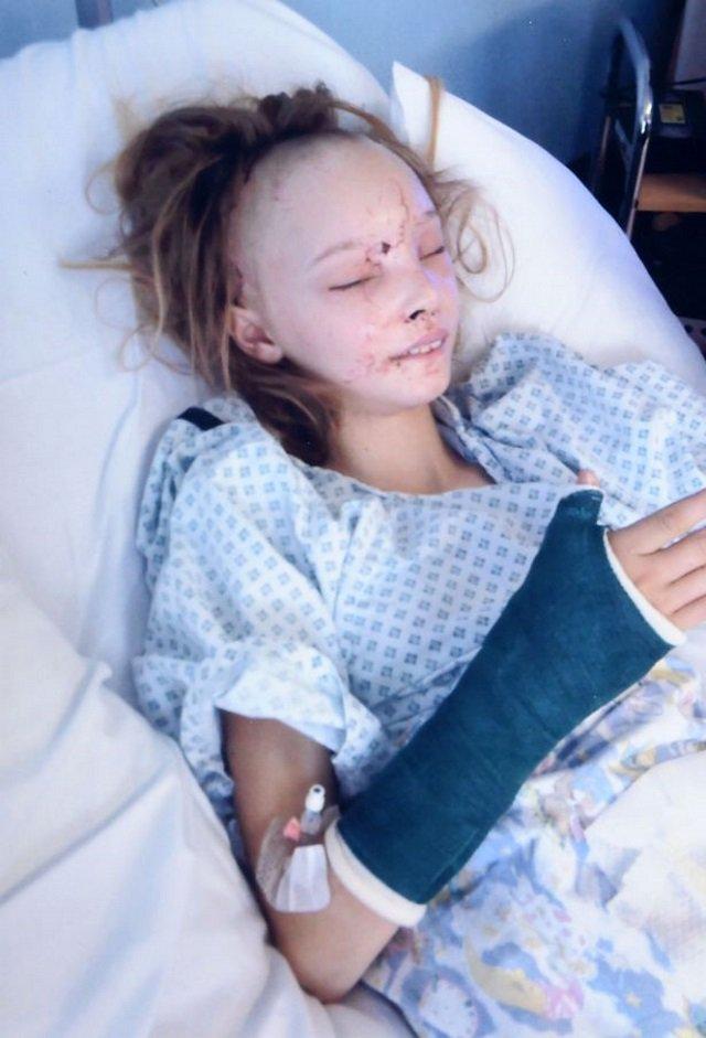 Veja como está a jovem que teve o rosto removido após acidente de carro