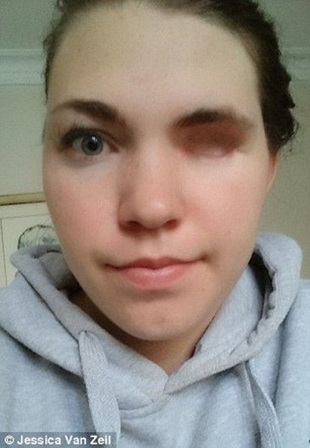 Veja o que esta jovem fez depois de perder o globo ocular e a pálpebra