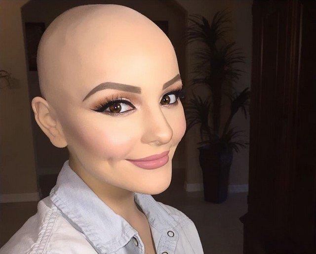 Jovem com câncer faz ensaio fotográfico incrível após perder os cabelos