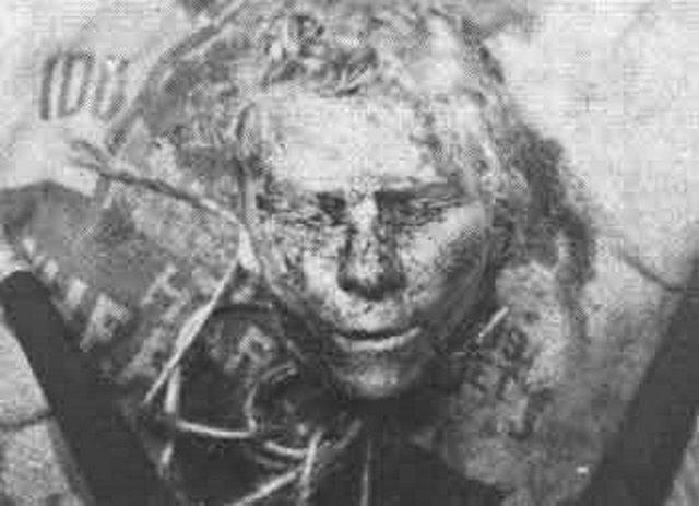 Cabeça de uma das vítimas do assassino