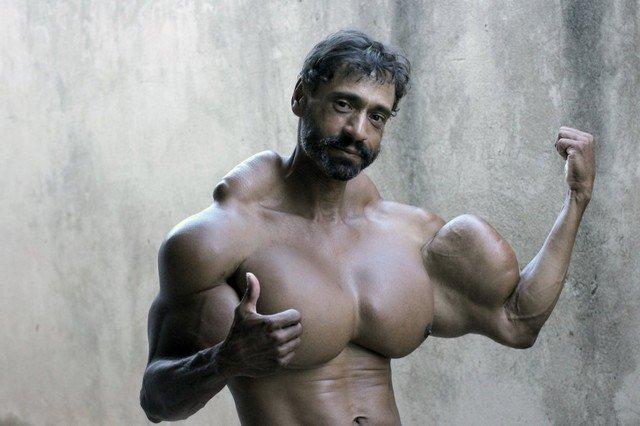 Este brasileiro injeta óleo em si mesmo há 5 anos para ficar musculoso