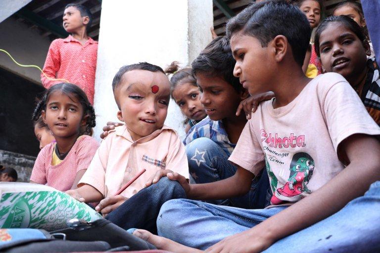 Menino com condição médica desconhecida é adorado como deus hindu na Índia