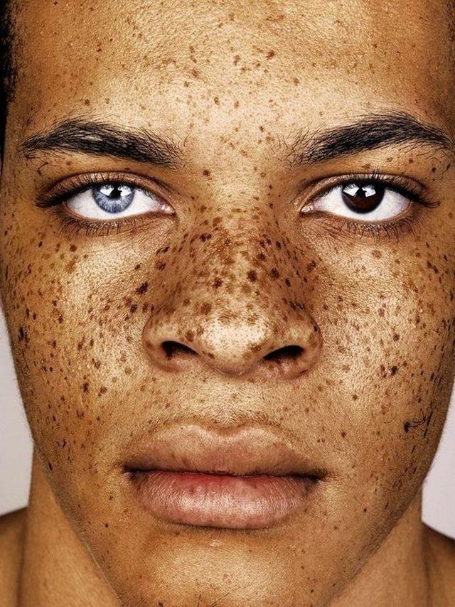 Ensaio fotográfico retrata a beleza peculiar de pessoas com sardas
