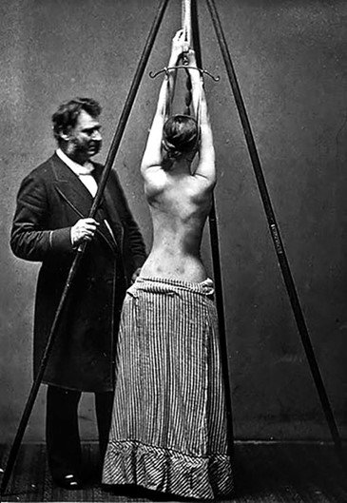 Imagens bizarras retratam tratamentos médicos ao longo da história