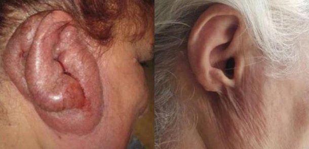 Fonte: JAMA Dermatology/Reprodução