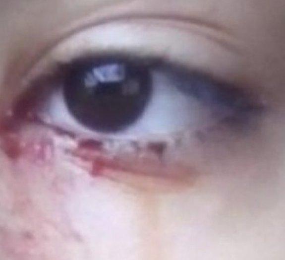 Adolescente brasileira chora sangue e caso perturba médicos
